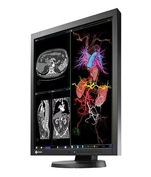 Eizo-Radiforce-MX215-clinical-review-monitor
